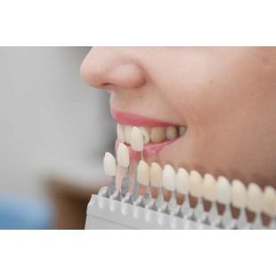 Металлокерамическая коронка для зуба