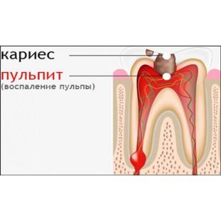 Пульпит и его лечение в Ростове-на-Дону в клинике Дент-Смайл