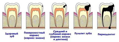 лечение кариеса в Ростове-на-Дону